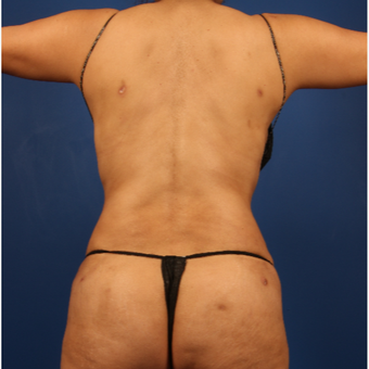 35-44 year old woman treated with Liposuction after 3596495