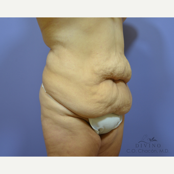 35-44 year old woman treated with Tummy Tuck before 3421960