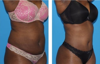 35-44 year old woman treated with Tummy Tuck after 2773943