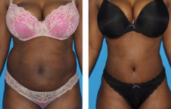 35-44 year old woman treated with Tummy Tuck before 2773943
