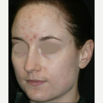 25-34 year old woman treated with Chemical Peel before 3123248