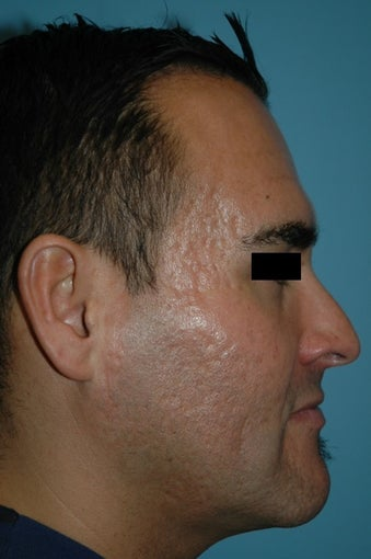 25-34 year old man treated with Microneedling for acne scars 2882913