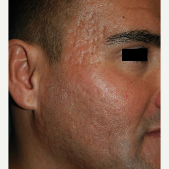 25-34 year old man treated with Microneedling for acne scars before 2882913