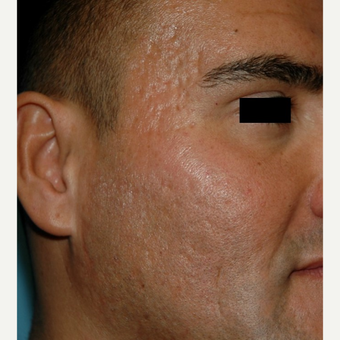 25-34 year old man treated with Microneedling for acne scars after 2882913