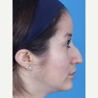 25-34 year old woman treated with Rhinoplasty before 3159517