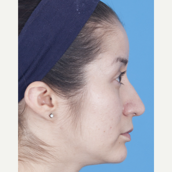 25-34 year old woman treated with Rhinoplasty after 3159517