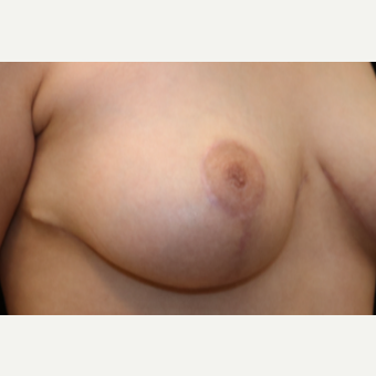18-24 year old woman treated with Nipple Surgery