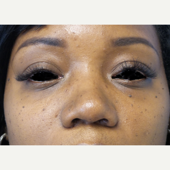 35-44 year old woman treated with African American Rhinoplasty after 3169304