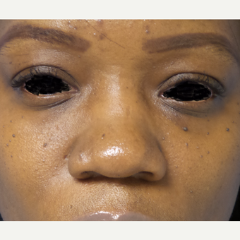35-44 year old woman treated with African American Rhinoplasty before 3169304