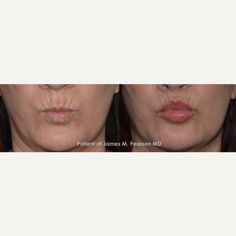45-54 year old woman treated with Lip Lift before 3117331