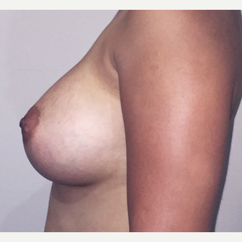 22 Year Old - Dual Plane Breast Augmentation after 3583338