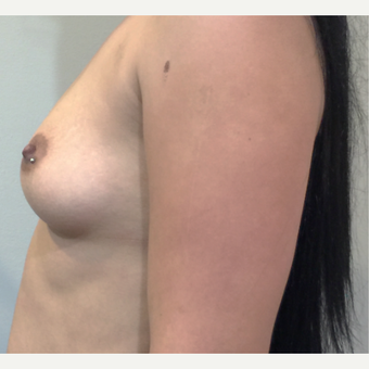 22 Year Old - Dual Plane Breast Augmentation before 3583338