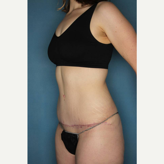 18-24 year old woman treated with Tummy Tuck after 3436187