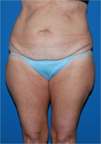 Body contouring for post pregnancy changes before 906933