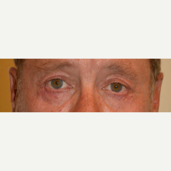 55-64 year old man treated with Eyelid Surgery after 3425581