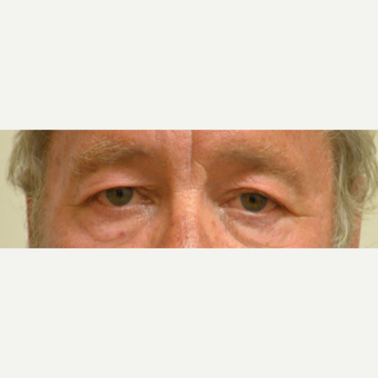 55-64 year old man treated with Eyelid Surgery before 3425581