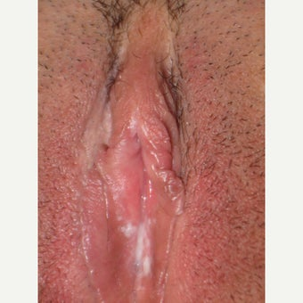 And hood of clitoris Picture