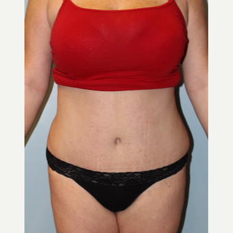 25-34 year old woman treated with Tummy Tuck after 3754150