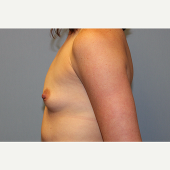35-44 year old woman treated with Breast Augmentation before 3569724