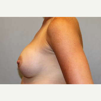 35-44 year old woman treated with Breast Augmentation after 3569724