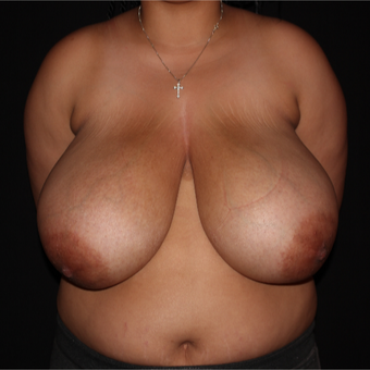 18-24 year old female treated with Traditional Breast Reduction before 3175869
