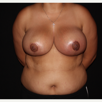 18-24 year old female treated with Traditional Breast Reduction after 3175869