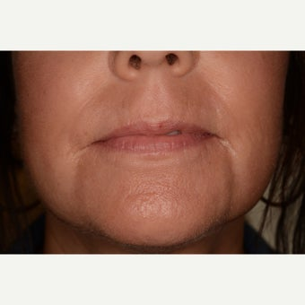 Lip lines perioral area treated with Fraxel Repair