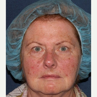 69 year old woman treated with IPL, Vbeam, and alexandrite before 1644209
