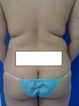 Laser Lipo before 333245