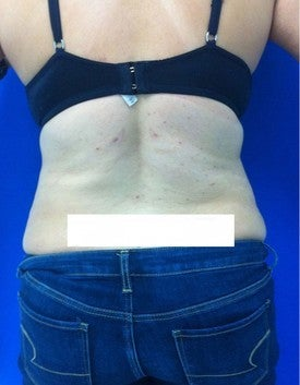 Laser Lipo after 333245