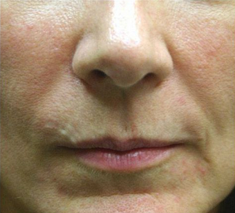 Juvederm before 1606405