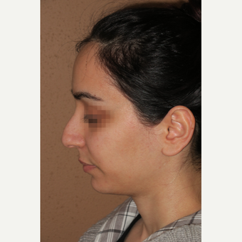 25-34 year old woman treated with Rhinoplasty before 3640098