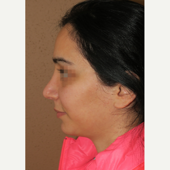 25-34 year old woman treated with Rhinoplasty after 3640098