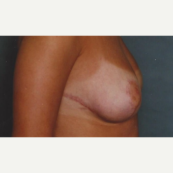 Breast Reduction after 3629294