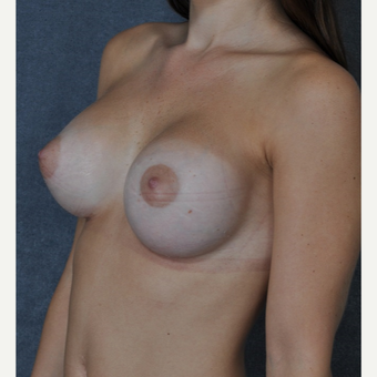 25-34 year old woman treated with Breast Implants after 3844317