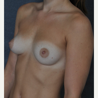 25-34 year old woman treated with Breast Implants before 3844317