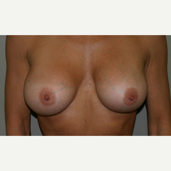 35-44 year old woman treated with Breast Augmentation after 3154060