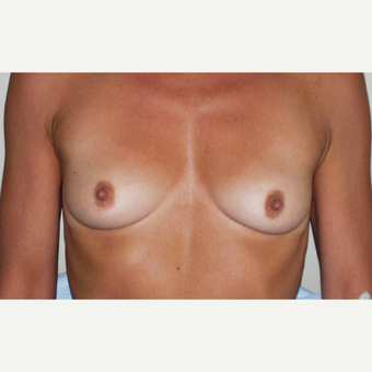 35-44 year old woman treated with Breast Augmentation before 3154060