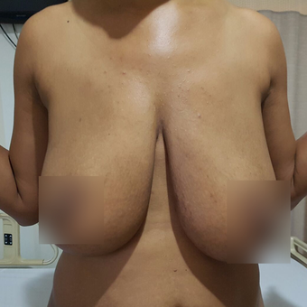 35-44 year old woman treated with Breast Lift before 3471449