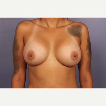 18-24 year old woman treated with Breast Augmentation after 3502472