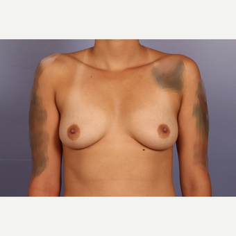 18-24 year old woman treated with Breast Augmentation before 3502472