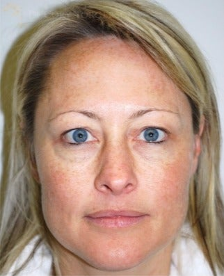 35-44 year old woman treated with Eyelid Surgery before 3264403