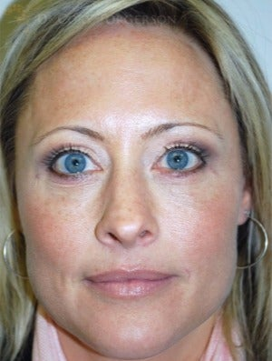 35-44 year old woman treated with Eyelid Surgery after 3264403