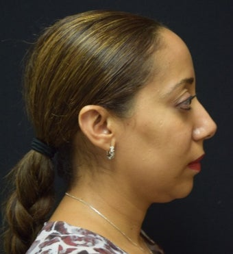 35-44 year old woman after 1 treatment of Kybella for submental fullness before 2290140