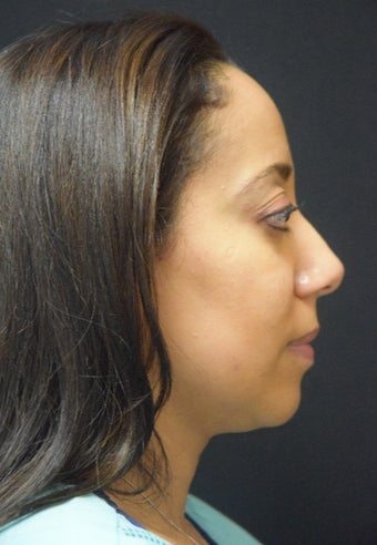 35-44 year old woman after 1 treatment of Kybella for submental fullness after 2290140
