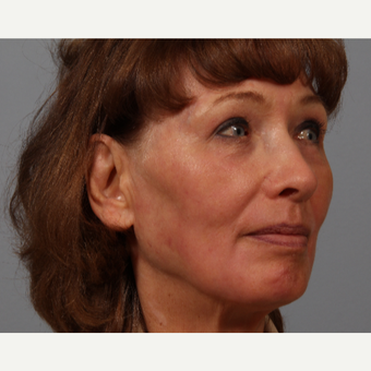 70 year old woman, upper lid skin laxity, wrinkles. Treated with upper lid bleph, laser resurfacing. after 3419537