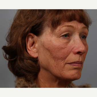 70 year old woman, upper lid skin laxity, wrinkles. Treated with upper lid bleph, laser resurfacing. before 3419537