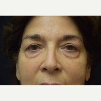 65-74 year old woman treated with Eye Bags Treatment before 2290775