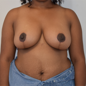 25-34 year old woman treated with Breast Reduction after 3316922