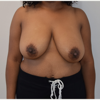 25-34 year old woman treated with Breast Reduction before 3316922
